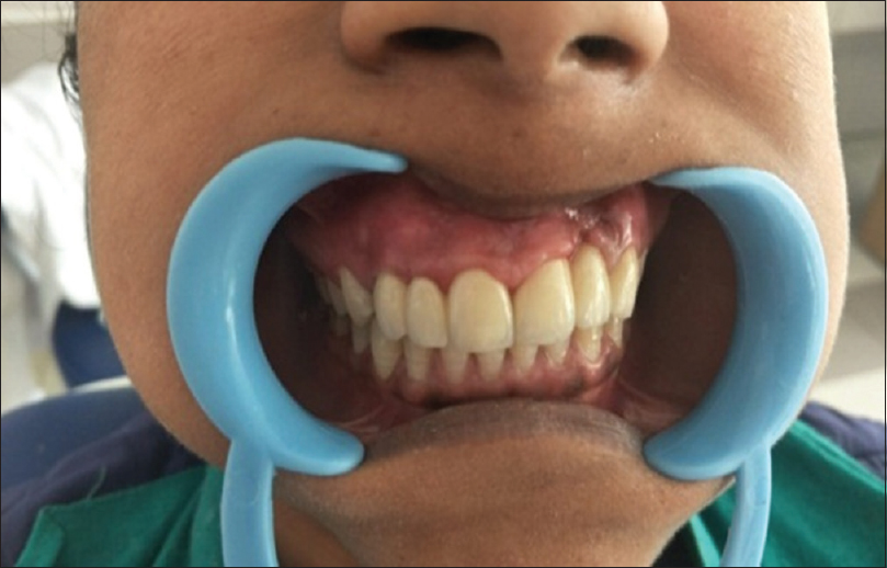 Complete esthetic rehabilitation of young patient with